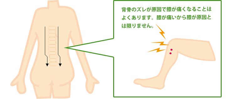 背骨のズレが原因の膝の痛みについて